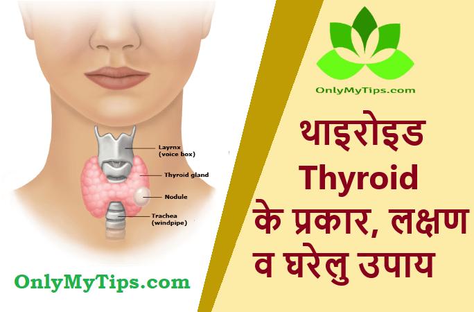 थायराइड के प्रकार, लक्षण व घरेलु उपाय | Thyroid Types, Symptoms and Home Remedies in Hindi