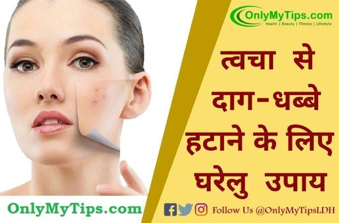 त्वचा से दाग धब्बे हटाने के लिए घरेलु उपाय | Home Remedies To Remove Spot on Skin in Hindi