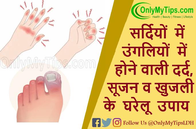 ठंड की वजह से हाथों पैरों की उंगलियों में होने वाली सूजन, दर्द व खुजली के घरेलू उपाय | Swelling in fingers, Chilblains in winter Treatment in Hindi